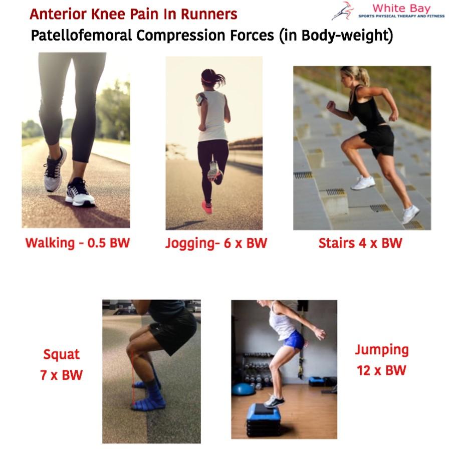 Anterior Knee Pain in runners