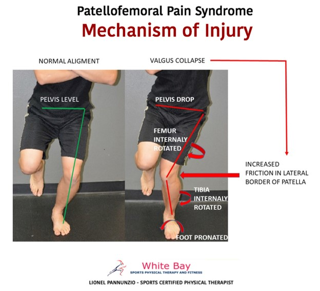 Patellofemoral Pain Syndrome Mechanism of Injury